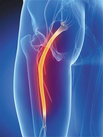 sciatalgia da problemi urologici