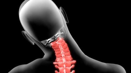 protrusioni discali rientrate osteopata roma silvia vitale